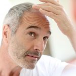 How To Become A Reliable Hair Transplant Expert?